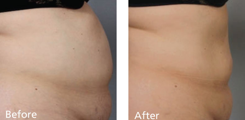 BodyFX_before-after-001