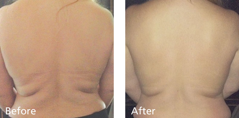 BodyFX_before-after-002