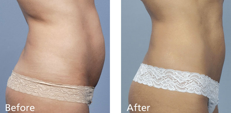 BodyFX_before-after-003
