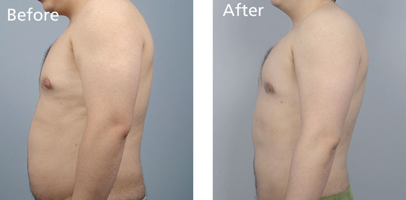 BodyFX_before-after-004