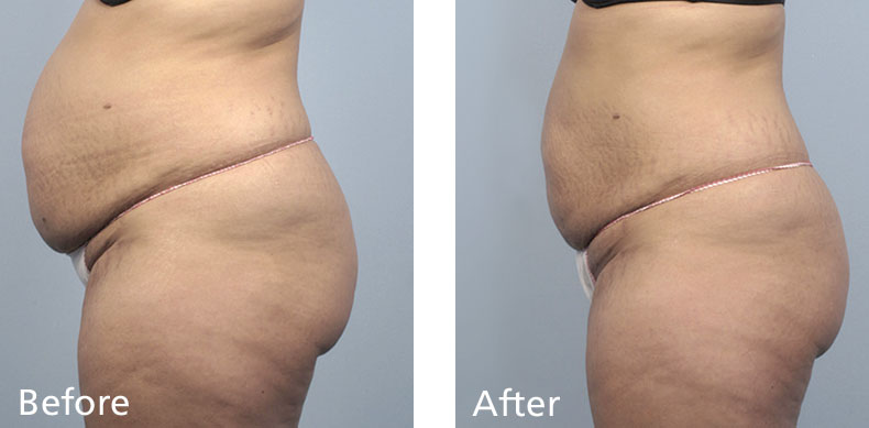 BodyFX_before-after-005
