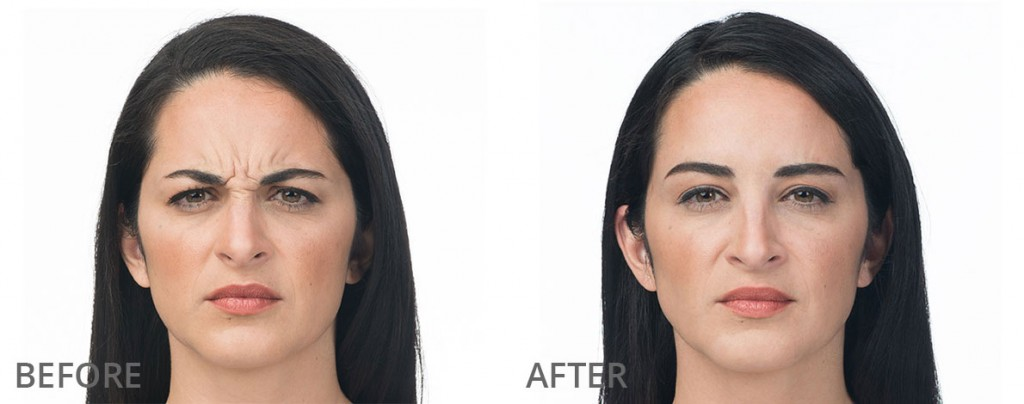Skin tightening treatment for face