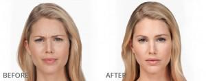 Anti aging skin care treatments