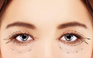 Saggy or Puffy Eyelids