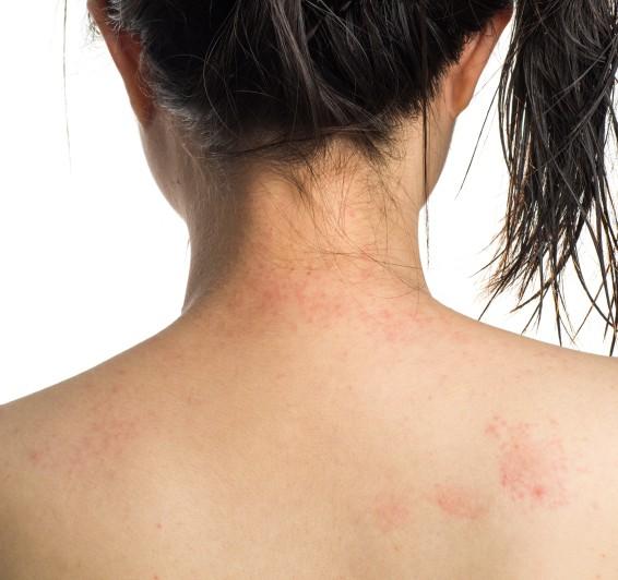 allergy ill skin on neck