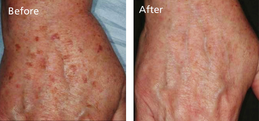 Restore your hands by clearing away brown age spots