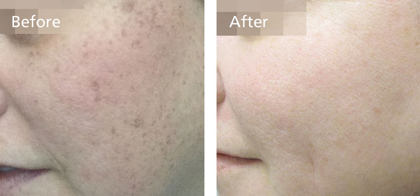 Resolve freckles, sun spots and age spots in 1 treatment
