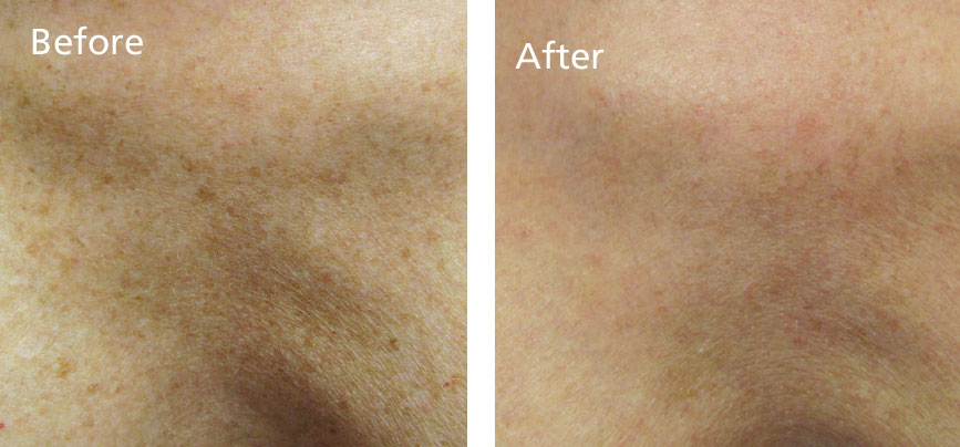 Improvements in brown age spots on the decolletage in 1 treatment