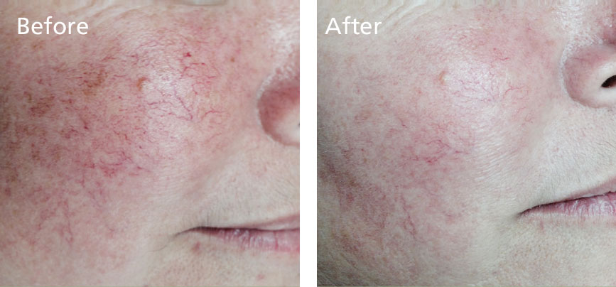 Reduction in rosacea and spider veins with 1 treatment