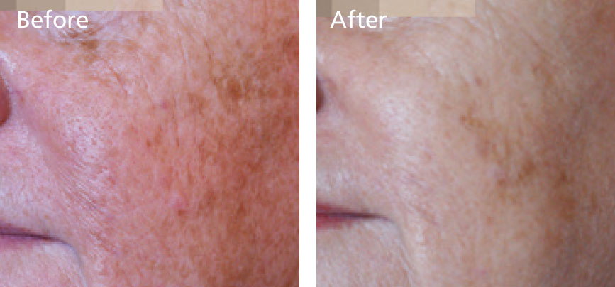 Reduction in age spots and skin irregularities