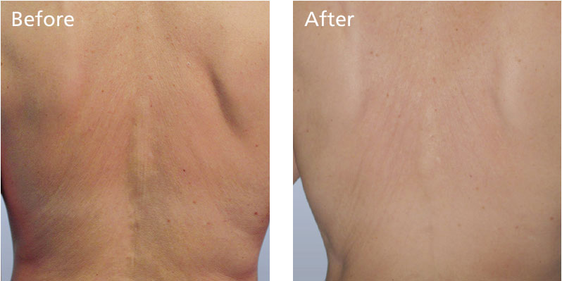 non surgical laser skin treatment
